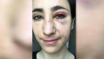 La joven ha compartido en sus redes el resultado del ataque.