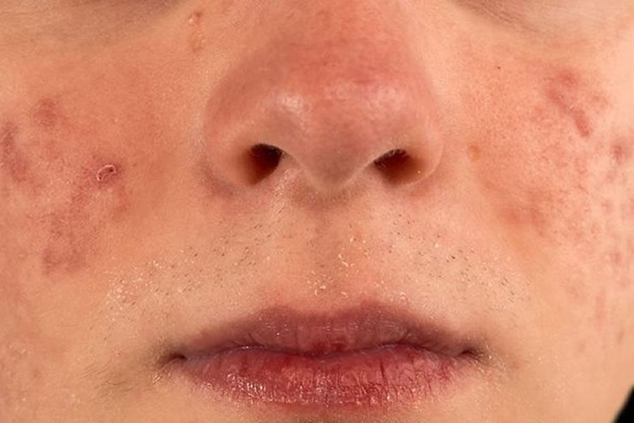 Lupus, una enfermedad que va más allá de la piel |  El Heraldo