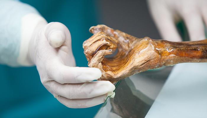Extremidad superior de Ötzi.