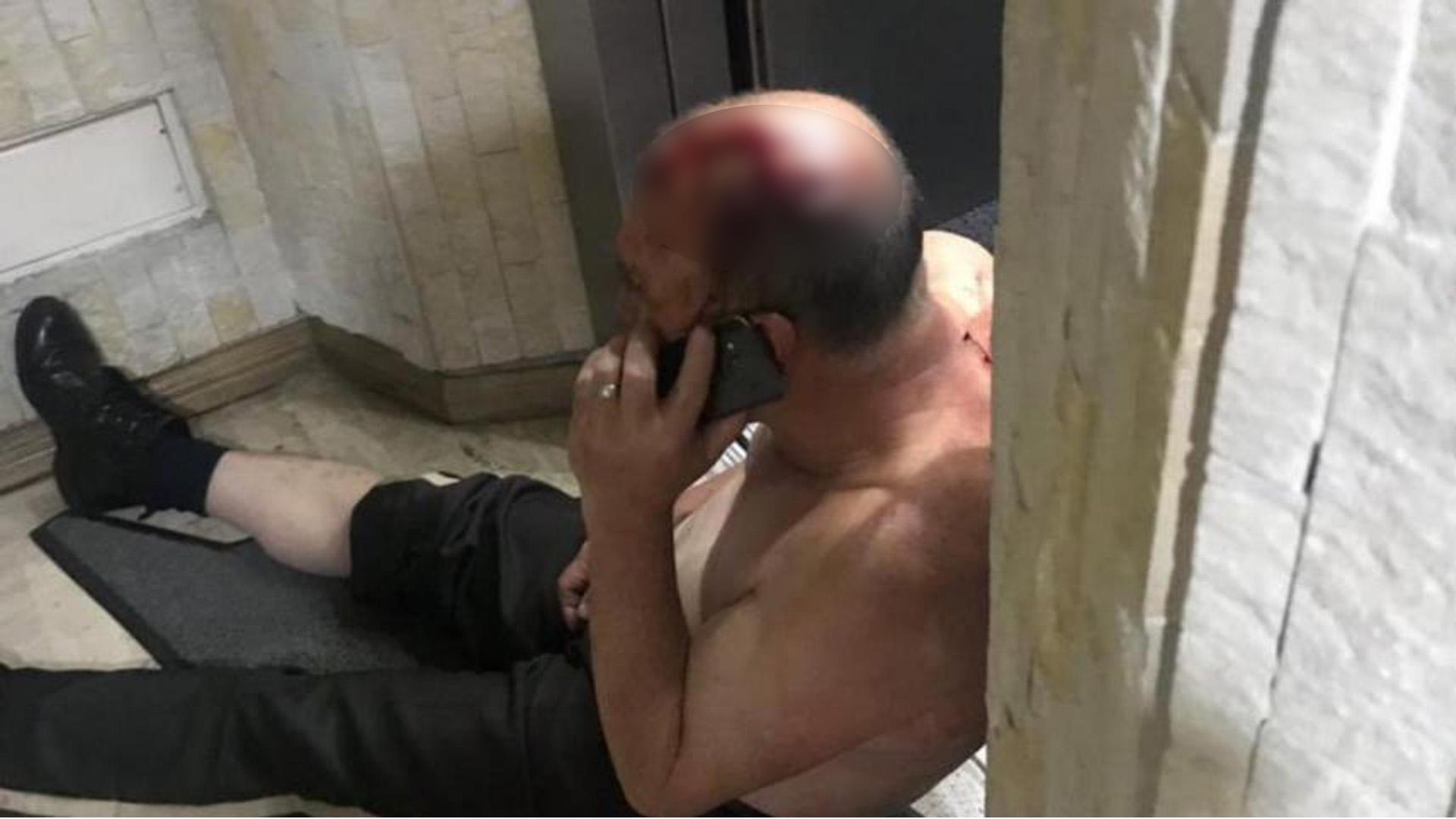 Hombre atacado por domiciliarios en Bogotá.