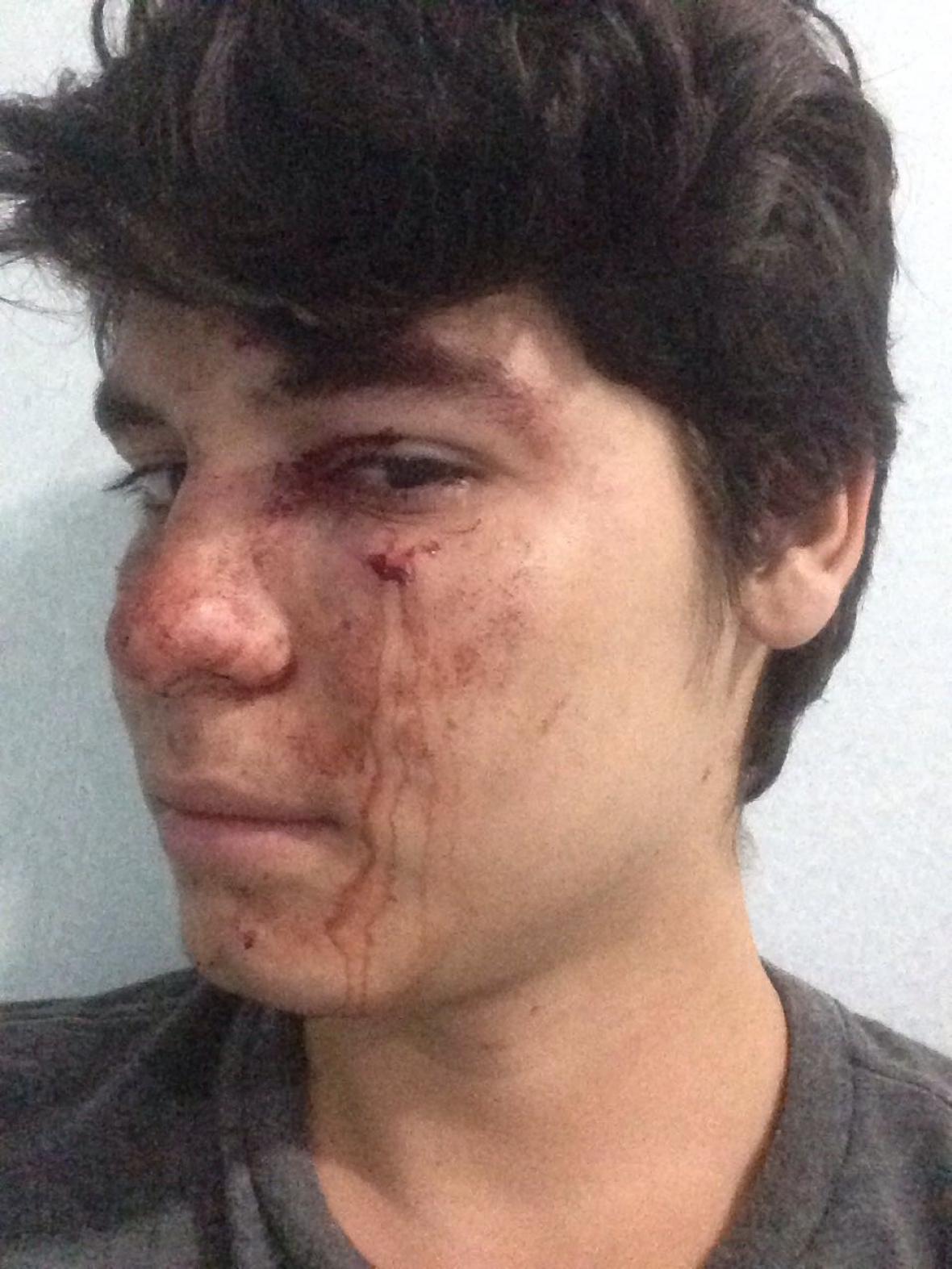 Sebastián Noguera Muñoz, el joven agredido.