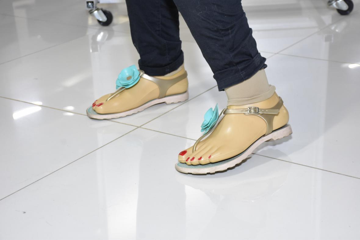 Así lucen las prótesis de Leiry Laura.