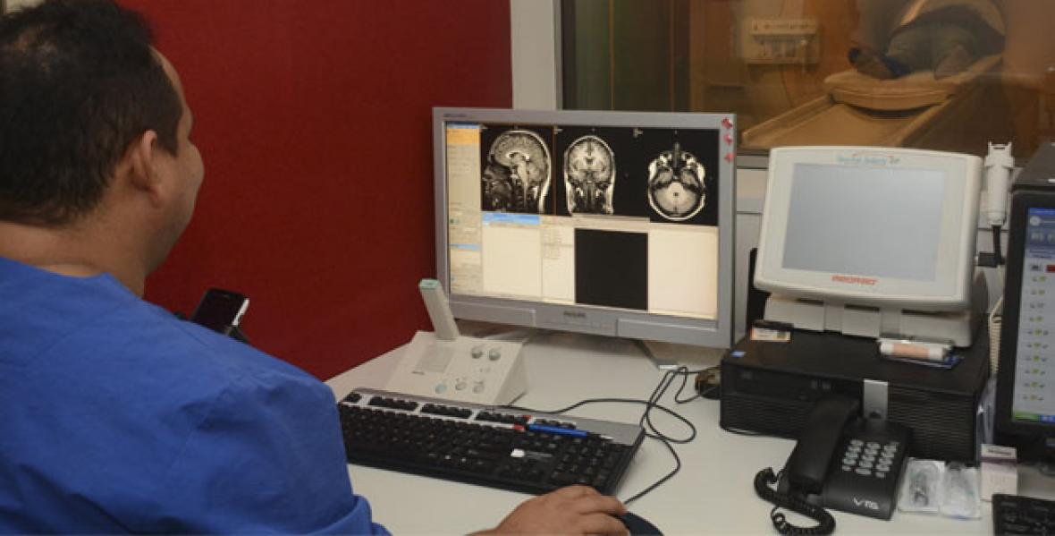 El cerebro analizado desde diferentes ángulos.