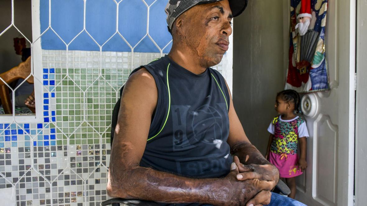 Un pedazo de la piel de su barriga le fue injertado a Leonel en su brazo derecho.