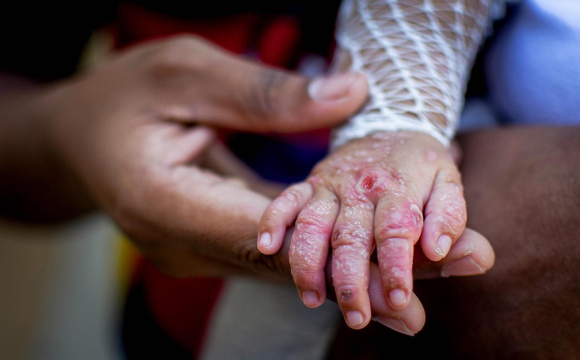 Jair Moreno sostiene la mano de su hijo, Asael, de cuatro meses.