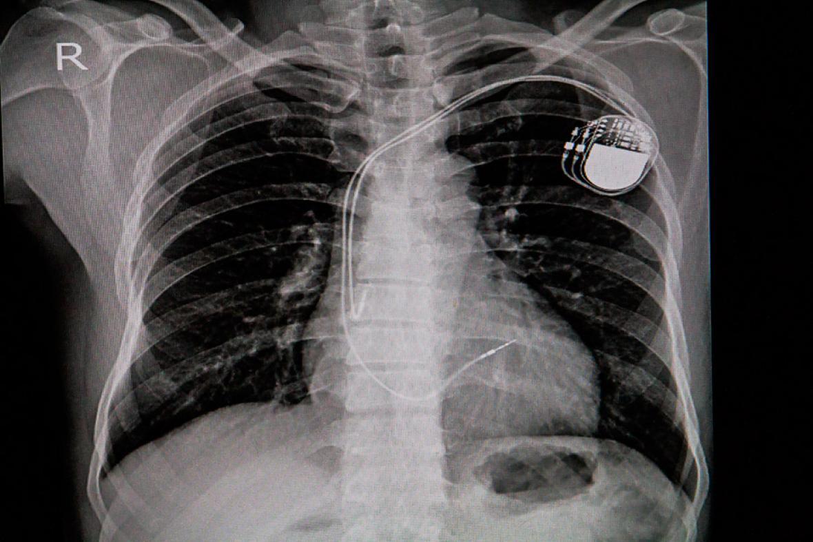 Radiografía de un paciente al que se le implantó un marcapasos.