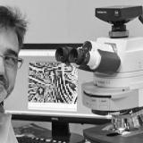 Científico español desarrolla método para detectar riesgo de cáncer de colon