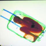 Escáner detecta a un niño de ocho años dentro de una maleta