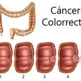 """La charcutería es cancerígena y la carne roja """"probablemente"""", según la OMS"""