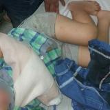 Niño de dos años sufre accidente en escaleras eléctricas