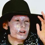 Natalia Ponce, el rostro del drama por ataques con ácido.