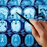 """""""Todos los accidentes cerebrovasculares son una emergencia"""": neurocirujanos"""