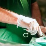 El raro caso del cirujano que grabó sus iniciales en hígados que trasplantaba a pacientes