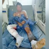 Joven bicicochero pierde una pierna tras caerle guaya eléctrica en El Boliche