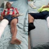 Luis Santamaría Zárate y Jorge Rodríguez Angulo, dos de los heridos en el accidente.