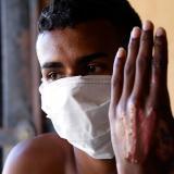 Un sobreviviente del incendio muestra las heridas en sus manos.