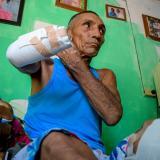 Jorge Anillo, a quien le cercenaron la mano.