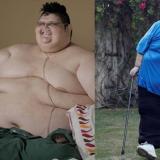 El mexicano que fue el más obeso del mundo alista reconstrucción de su cuerpo