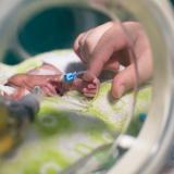 Bajo peso al nacer, un problema que la covid-19 desnudó