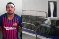 Joe Marrugo López le fracturó la pierna izquierda al uniformado de la Policía.