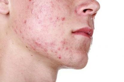 Piel afectada con acné.