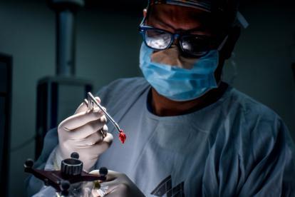 Momento de la extracción del tumor ubicado en la fosa posterior del cráneo por parte de los médicos.