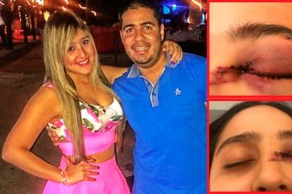 La agredida con su pareja y la parte del ojo afectada.