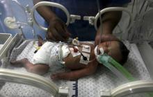 Médicos en Gaza rescatan por cesárea a bebé en el cuerpo de su madre muerta