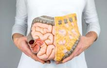 Cáncer de colon, una enfermedad con una alta tasa de supervivencia