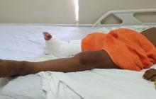 Hospital de Riohacha opera a niño wayuu sin tobillo ni rodilla y con una pierna más corta que la otra