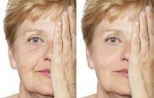 Las cremas antiarrugas no las eliminan, las atenúan