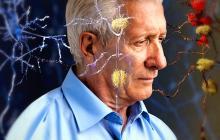 ¿Por qué los laboratorios aún no saben cómo enfrentar el Alzheimer?