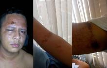 Así quedaron el rostro y las extremidades de Miguel Jaimes tras la agresión.