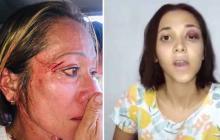 Mujeres maltratadas.