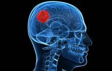 Tumor cerebral. Imagen de referencia.