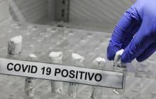 Atlántico reporta nueve fallecidos y 290 casos de Covid-19
