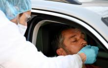 Alteración gusto y olfato por Covid afecta más a jóvenes y no hospitalizados