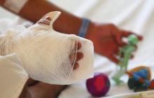 Menor de 13 años se quemó con pólvora en Aracataca, Magdalena