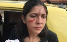 Mujer fue agredida de un botellazo por pedir respeto