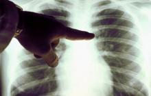 A través de una aplicación  buscan diagnosticar el cáncer de pulmón