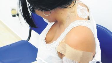 Yesenia Pérez, de 33 años, es una de las dos víctimas por ataque de ácido que se ha presentado recientemente en Barranquilla.