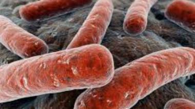 """Según el estudio, la bacteria responsable de la tuberculosis (""""Mycobacterium tuberculosis"""") se originó en África."""