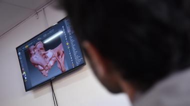 Una cadera en 3D sirve como modelo para practicar cirugía