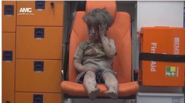 La imagen de un niño herido llama la atención sobre el drama de Alepo.