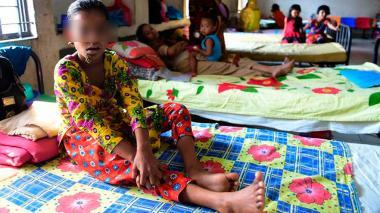 Niña de diez años es diagnosticada con la enfermedad del 'hombre árbol' en Bangladesh