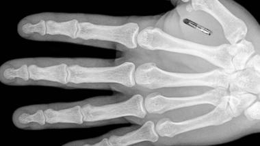 Empresa belga implanta chip a 8 de sus empleados