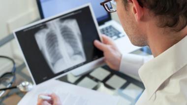 ONU concreta plan para combatir la tuberculosis antes de la primera cumbre
