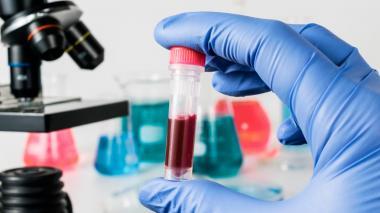 Más de 33 mil muertes por bacterias resistentes