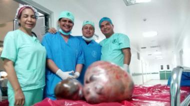 Extirpan en Maicao el tumor más grande del país, pesó 28 kilos