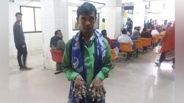 'Hombre árbol' bangladesí vuelve al quirófano tras el deterioro de su condición